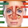 gajmorit simptomy prichiny poyavleniya issledovanie i lechenie